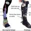 筋肉が伸縮するウェアラブル・ロボットのリハビリ器具